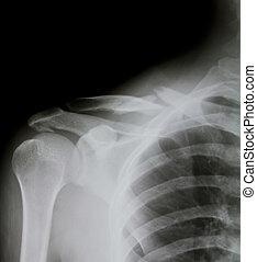 épaule, (broken, shoulder), rayon x, humain