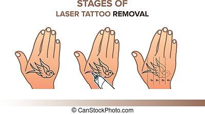 étapes, illustration, déménagement, laser, tatouage