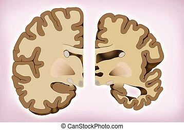 über, gesunde, alzheimer's., abbildung, gehirn, noch ein, zwischen, unterschied