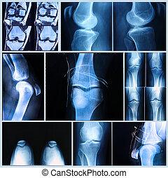 überfliegen, medizin, mri, knie, exam:, röntgenaufnahme