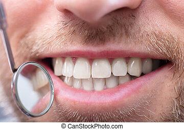 überprüfung, dental, haben, mann