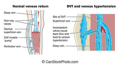 żyła, thrombosis, głęboki