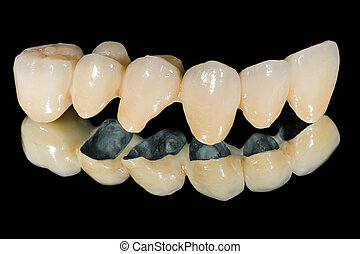 γέφυρα , οδοντιατρικός , κεραμικός
