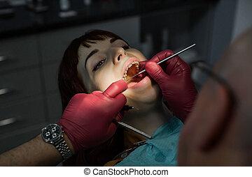 γυναίκα , καρέκλα , concept., οδοντιατρικός , νέος , οδοντίατρος , διάβημα , εξέταση , treatment., όμορφη , σαράκι , πρόληψη , κατά την διάρκεια