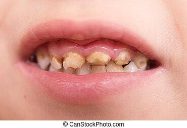 κακός , δόντια