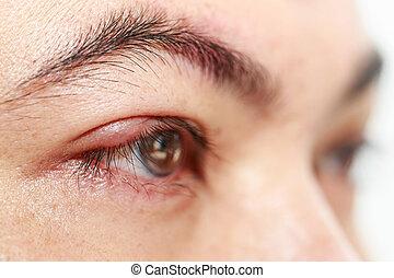 """καπάκι , άνω δεξιός , μάτι , απόστημα , """"stye, hordeolum"""", ή"""