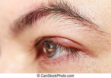 """καπάκι , ανώτερος , μάτι , απόστημα , """"stye, hordeolum"""", ή , αριστερά"""