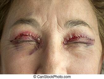 καπάκι , χειρουργική , μάτι