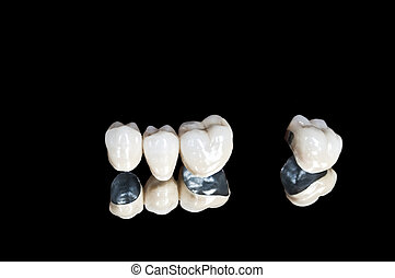 κεραμικός , οδοντιατρικός , αγκώνας αγκύρας