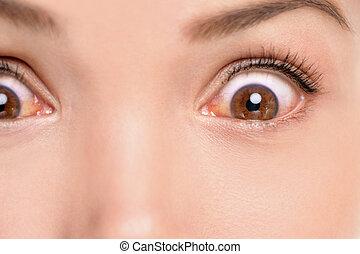 μάτι , ιατρικός , πρόσωπο , γυναίκα , φλόγωση της μεμβράνης των βλεφάρων , infection., μάτια , αντίδραση , αλλεργικός , ερεθισμένος , closeup , πρόβλημα , inflammation., αναποδογυρίζω , ακυρώνω , αγριομάλλης , κόκκινο
