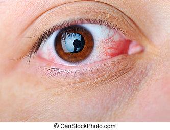 νόσος , μάτι