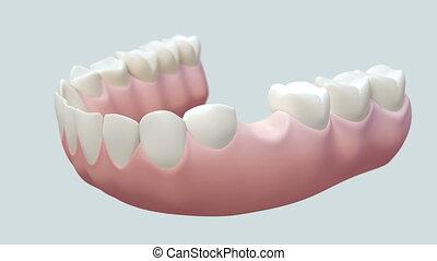 οδοντιατρικός , γέφυρα , άσπρο