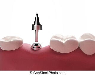 οδοντιατρικός , εμφυτεύω