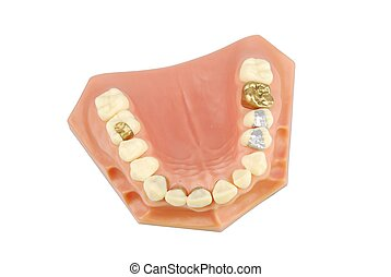 οδοντιατρικός , μοντέλο , (with, διαφορετικός , treatments)