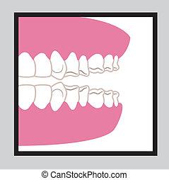 οδοντιατρικός , σχεδιάζω