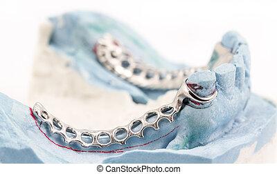οδοντιατρικός , σύρμα , κάμψη