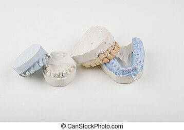 οδοντιατρικός mold