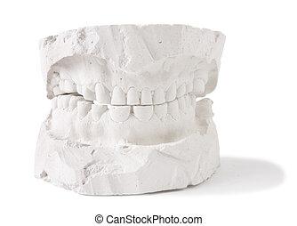 οδοντιατρικός , prostesis