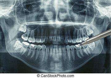 οδοντιατρικός xray