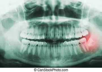 πανοραματικός , οδοντιατρικός ακτίνα ραίντγκεν