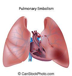 πνευμονικός , eps10, εμβολισμός