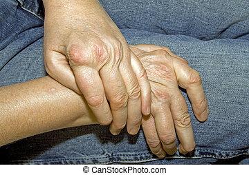 ρευματισμός