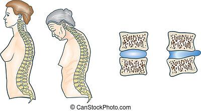 σπονδυλική στήλη , ανθρώπινος
