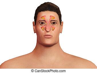 σώμα , ιγμόρειο άντρο , ρινικός , αναφλέγω , ζεσεεδ , sinusitis , άντραs , malaise., sinusitis., αλλεργικός