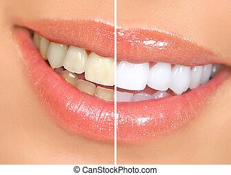 женщина, teeth