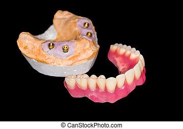 зубной протез, съемный