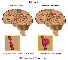 инсульт, головной мозг