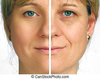 коррекция, of, wrinkles, -, половина, лицо