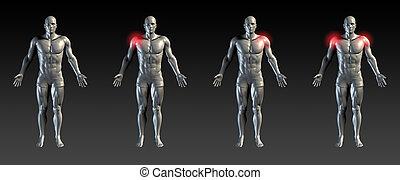 плечо, травма