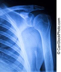 плечо, травма, ортопедия, xray, сканирование