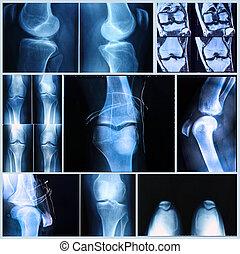 сканирование, медицинская, mri, колено, exam:, рентгеновский