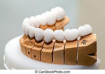 цирконий, фарфор, зуб, пластина, в