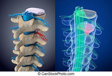 шнур, medically, точный, выпячивание, disc., xray, давление, иллюстрация, под, view., спинномозговой, 3d