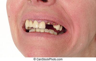 דאג, שבור, של השיניים, שיניים