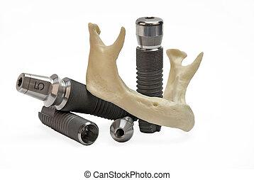 דוגמאות, של, של השיניים, טיטניום, משריש