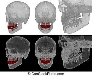דוגמה רפואית, של, ה, שן