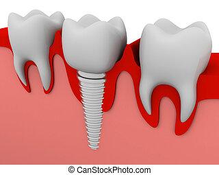השרש, של השיניים