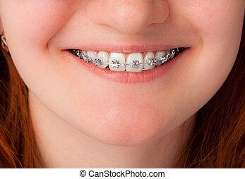 זהירות של השיניים, concept., שיניים, עם, מישענים
