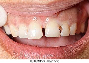 חור, של השיניים, נקה