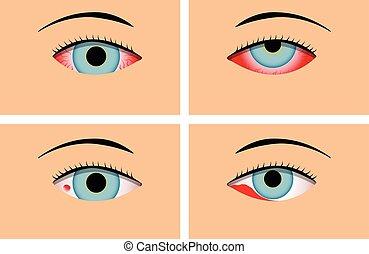 מאוד אדום, דלקת הלחמית, וקטור, עיניים אדומות