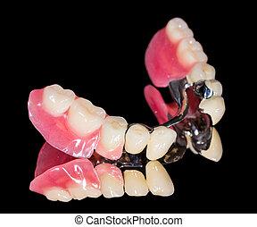 ניתן להסרה, של השיניים, תותבות