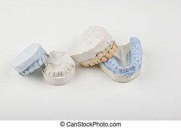 עובש של השיניים