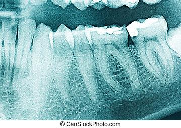 פנורמי, רנטגן של השיניים