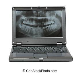 קטן, מחשב נייד, עם, של השיניים, דמין, של, לסת