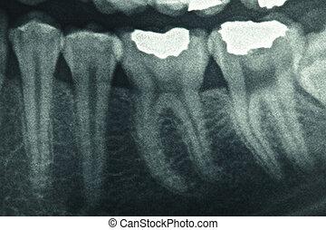 רנטגן של השיניים