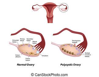 שחלה, polycystic, eps8, נורמלי